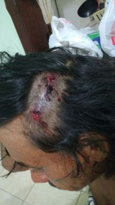 Inaldo mit Kopfverletzung durch einen Schuss/ Foto: Gamela